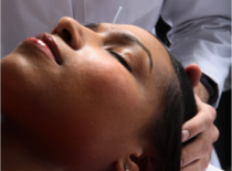 Need to Relax? Acupuncture will get you there!
